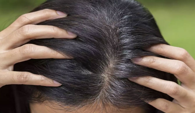 Grey hair at 30? Home remedies to REVERSE the problem