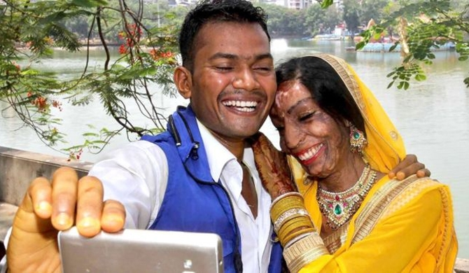 Acid-attack victim finds love from a wrong number