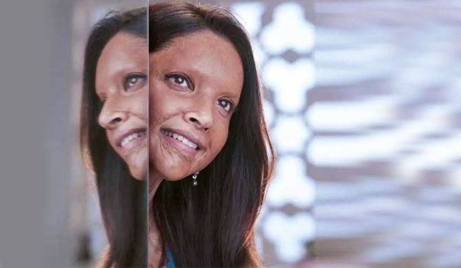 Deepika's new look in 'Chhapaak'